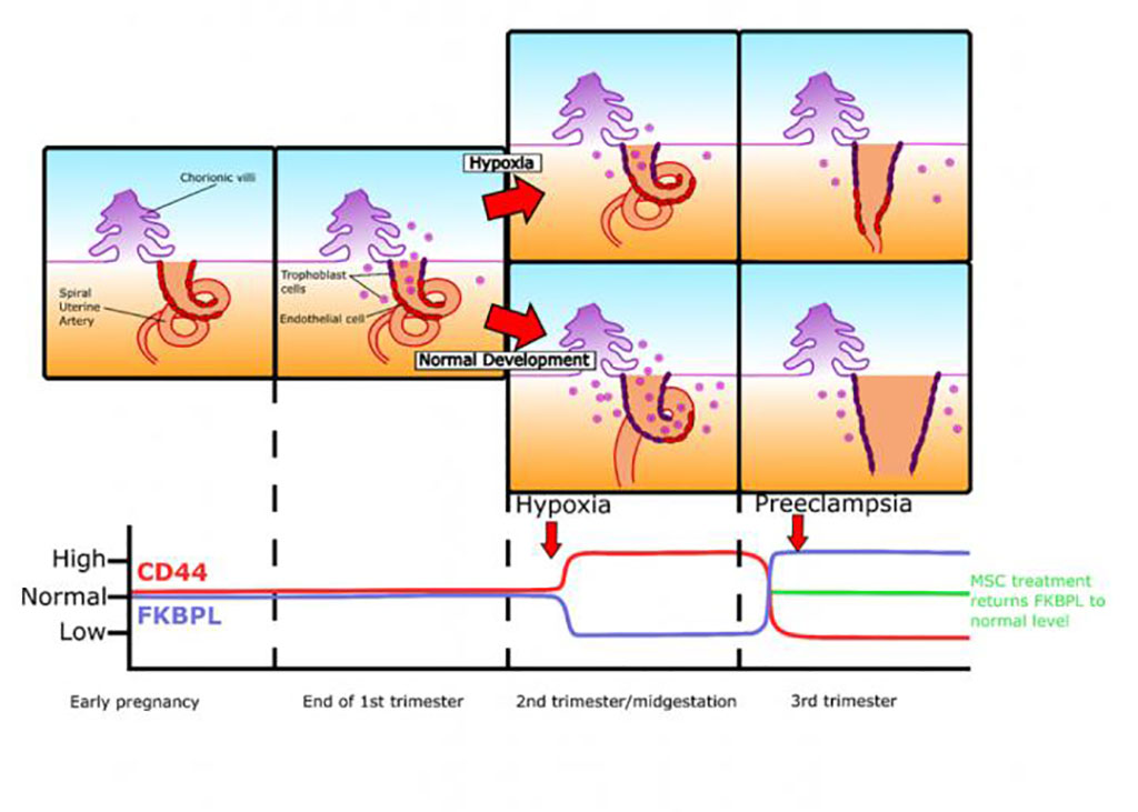 Image: Summary of changes FKBPL and CD44 changes throughout gestation in pregnancies complicated by pre-eclampsia (Photo courtesy of Oxford Press)