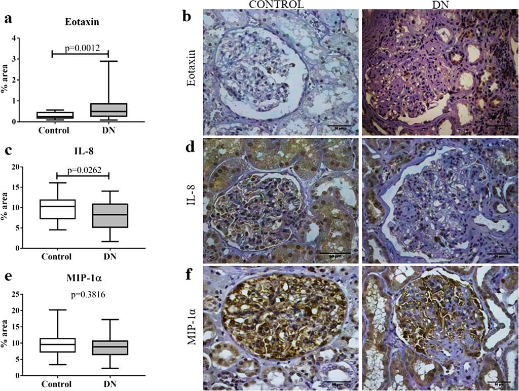 In situ expression of chemokines eotaxin, IL-8, and MIP-1α in glomerular and tubulointerstitial compartments in patients with diabetic nephropathy (DN) and control group (Photo courtesy of Federal University of Triângulo Mineiro).
