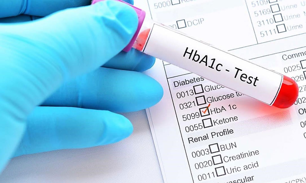 By measuring glycated hemoglobin (HbA1c), clinicians are able to get an overall picture of what the average blood sugar levels have been over a period of weeks/months (Photo courtesy of Diabetes.co.uk).