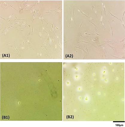 Cells in wells of a 96 well-plate before (A) and after (B) lysis cell by Direct PCR (B1) and Chelex100 (B2) (Photo courtesy of University Hospital Hamburg‐Eppendorf).