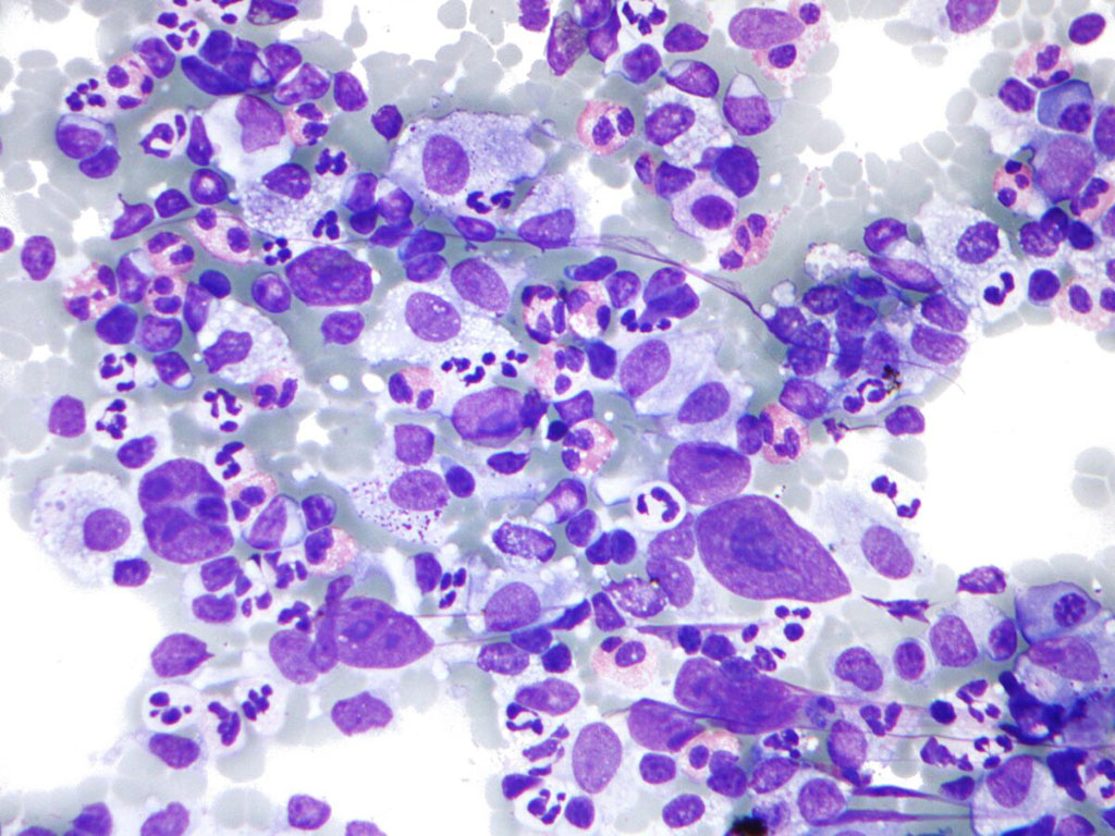 Image: Photomicrograph of Hodgkin lymphoma (HL), from a fine needle aspiration of a lymph node, which shows a mixture of cells common in HL: Eosinophils, Reed-Sternberg cells, Plasma cells, and Histocytes (Photo courtesy of Nephron).