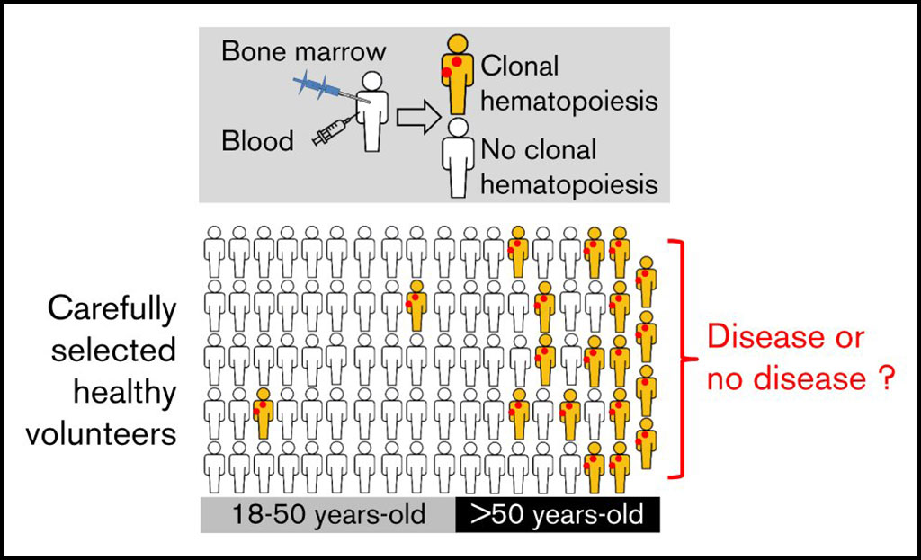 Image: Higher prevalence of clonal hematopoiesis found in the blood and bone marrow of older healthy volunteers (Photo courtesy of Sorbonne University).