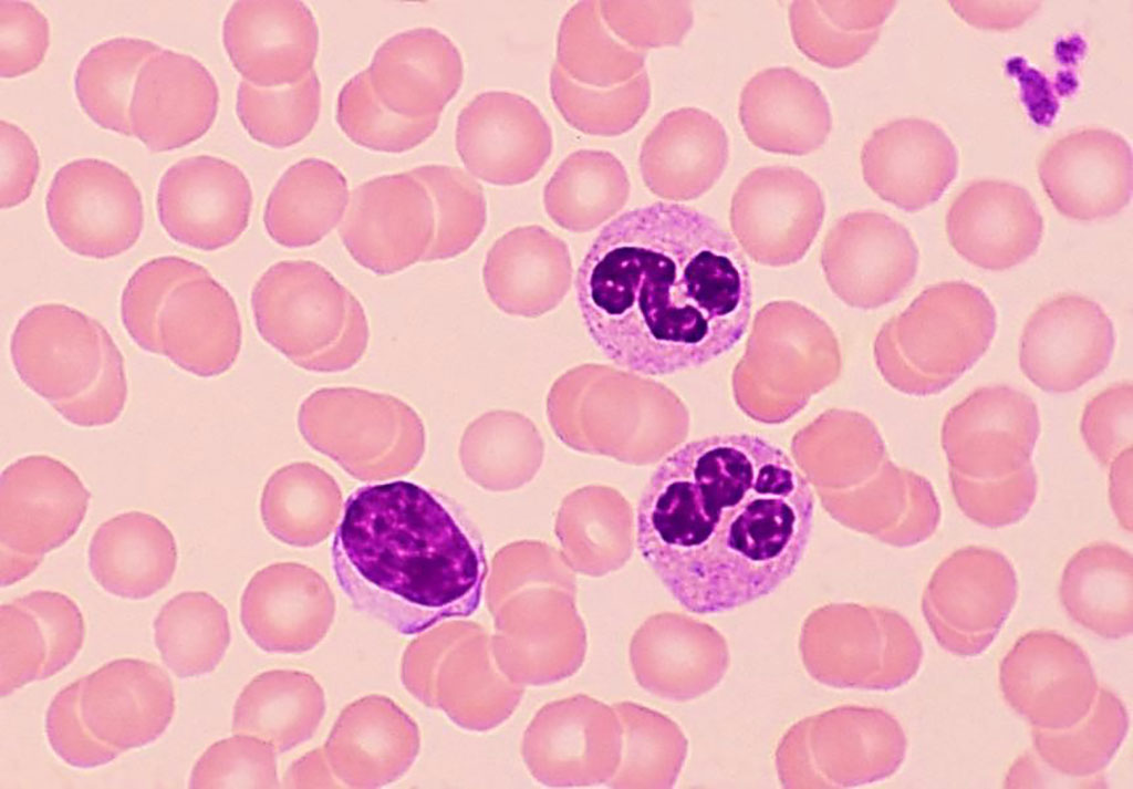 Image: A blood film with a normal mature lymphocyte with a single large nucleus is seen on the left, compared to two segmented neutrophils on the right with multiple nuclear lobes. The lymphocytes are decreased in comorbid diabetes and COVID-19 patients (Photo courtesy of Ed Reschke).