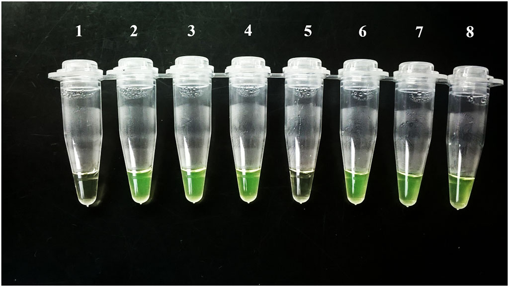 Image: Visualization of Loopamp Trypanosoma cruzi results by the naked eye, Tubes 1 (Negative control) and 5 were negative, but #5 was positive on qPCR with a very low DNA load (Photo courtesy of Laboratorio de Biología Molecular de la Enfermedad de Chagas).