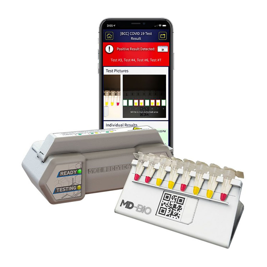 Image: MobileDetect Bio (MD-Bio) BCC19 COVID-19 test kit (Photo courtesy of DetectaChem)