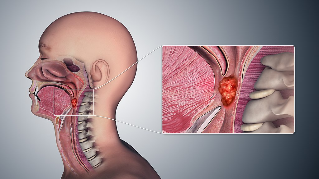 Image: Illustration depicting tumor formation in the tissues of the oropharynx (Photo courtesy of Wikimedia Commons)