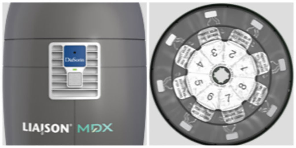 Image: LIAISON® MDX (Photo courtesy of DiaSorin Molecular LLC)