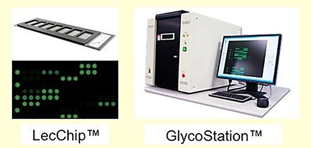 Image: The LecChip and GlycoStation were used to identify subtle surface ABO blood group glycoprotein density variations (Photo courtesy of Glycotechnica).