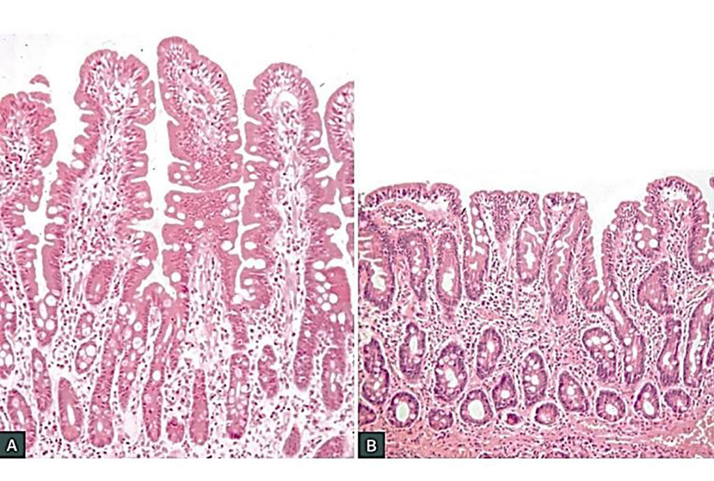 Image: Histology of normal small intestinal mucosa in adequately treated celiac disease (A). Untreated coeliac disease shows the classic triad of infiltration of the epithelium with lymphocytes, crypt hyperplasia and villous atrophy (B) (Photo courtesy of Professor Jason Tye-Din, MBBS PhD).