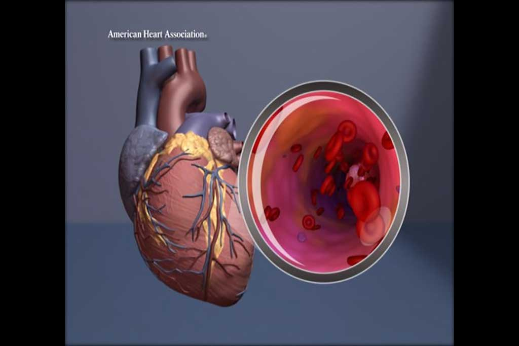 Image: Illustration of the heart with magnification of the artery (Photo courtesy of American Heart Association)