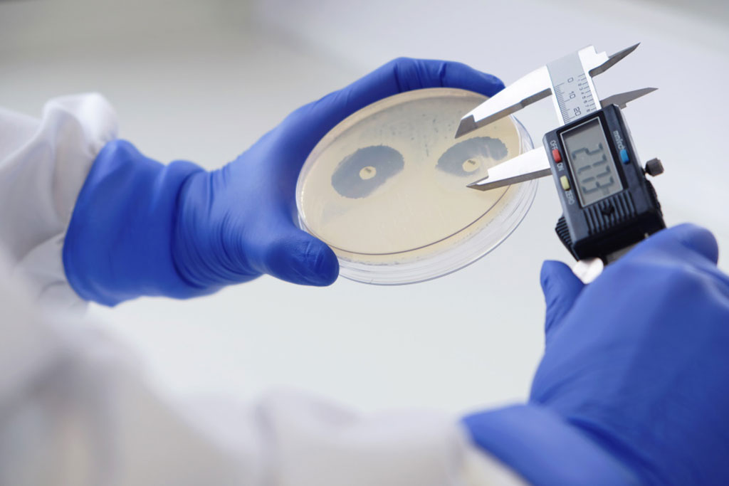 Image: Mast Awarded Public Health England Tender for Exclusive Supply of AST and AMR Discs (Photo courtesy of Mast Group Ltd.)