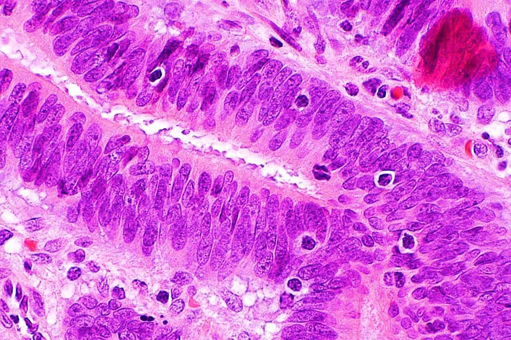 Image: Photomicrograph showing tumor-infiltrating lymphocytes in colorectal carcinoma which are suggestive of microsatellite instability (Photo courtesy of Nephron)