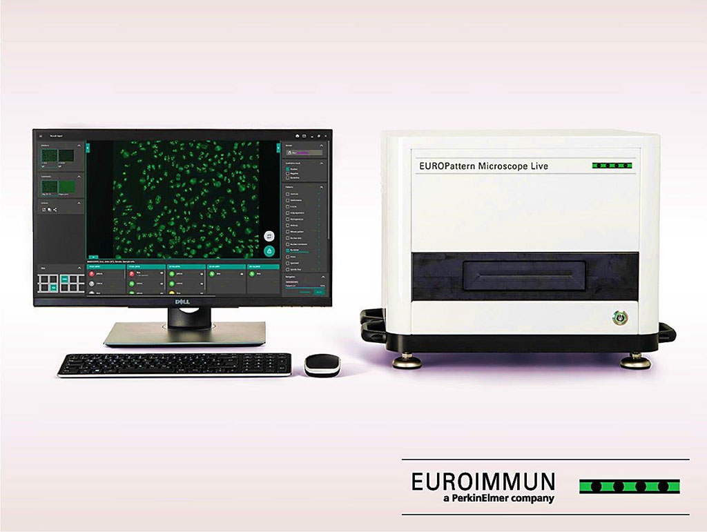 Image: The EUROPattern Microscope Live: Ultrafast fluorescence microscopy that automatically detects anti-neutrophil cytoplasmic antibodies (Photo courtesy of EUROIMMUN AG).