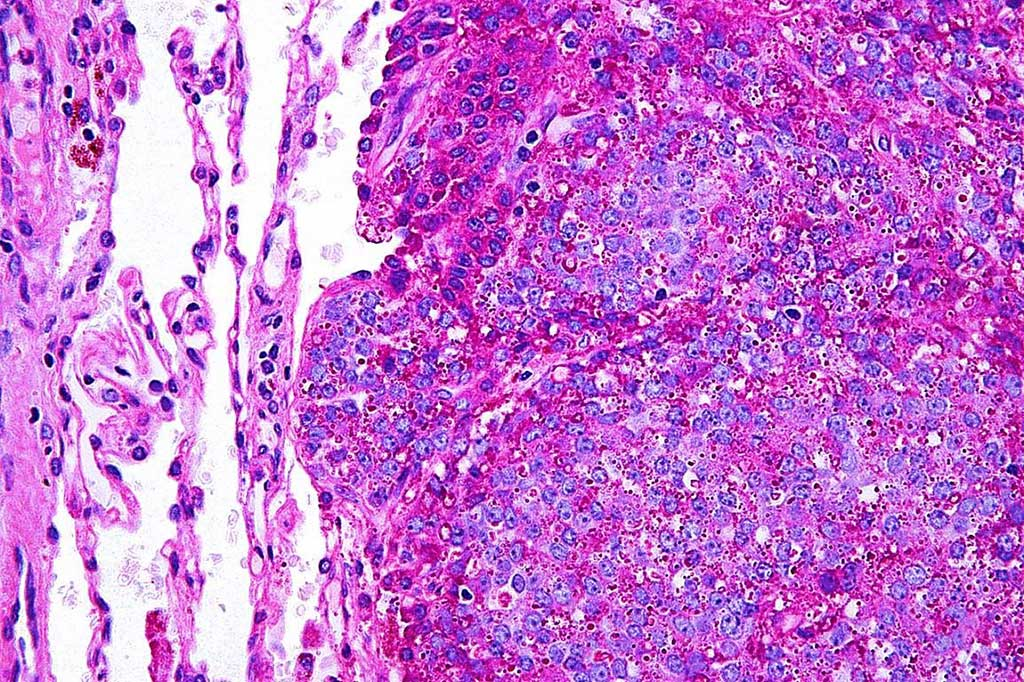 Image: Photomicrograph of histology of a Ewing sarcoma in lung. The PAS stain highlights glycogen and the staining was negative with a PAS diastase stain (Photo courtesy of Nephron).