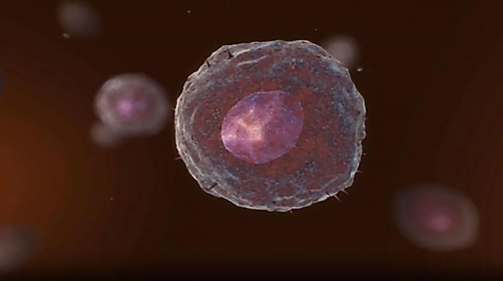 Image: Circulating tumor cells (CTCs) are cancer cells that are released and disseminated into the bloodstream and lymphatic system. CTC cultures were successfully propagated from breast epithelial cells (Photo courtesy of Menarini Silicon Biosystems).