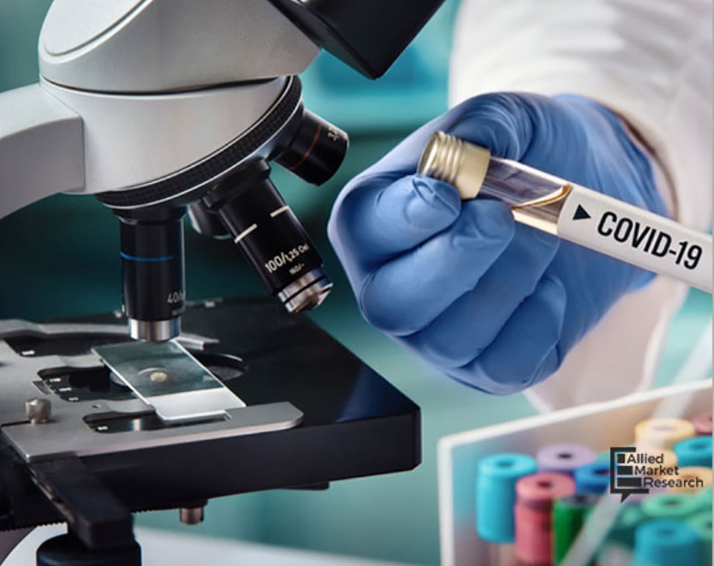 Image: Global COVID-19 Diagnostics Market to Reach USD 9.94 Billion by Fourth Quarter of 2020 (Photo courtesy of Allied Market Research)