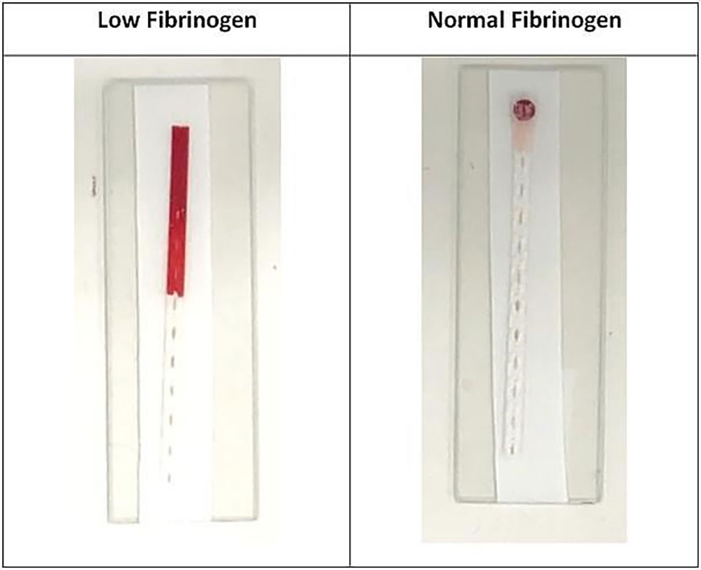 Image: Fibrinogen Test: people with low fibrinogen levels show a rapid movement of blood up the device (Photo courtesy of Monash University).
