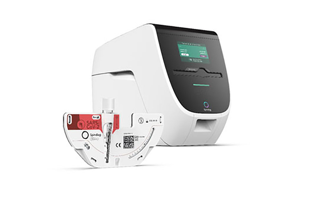 Image: Mobile Mini-Laboratory System (Photo courtesy of Spindiag GmbH)