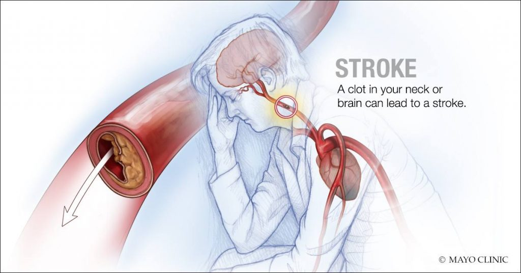 Image: A clot in the neck or brain can lead to a stroke (Photo courtesy of Mayo Clinic)