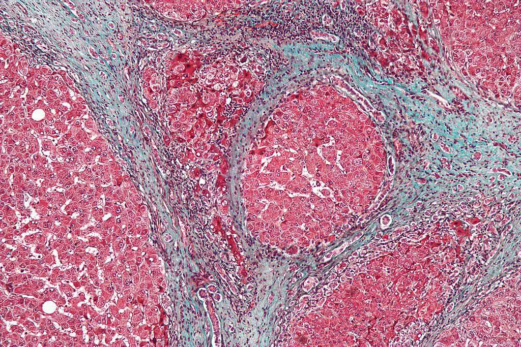 Image: Micrograph showing fibrosis of the liver caused by cirrhosis. The tissue in this example is stained with a trichrome stain, in which fibrosis is colored blue. The red areas are the nodular liver tissue (Photo courtesy of Wikimedia Commons)