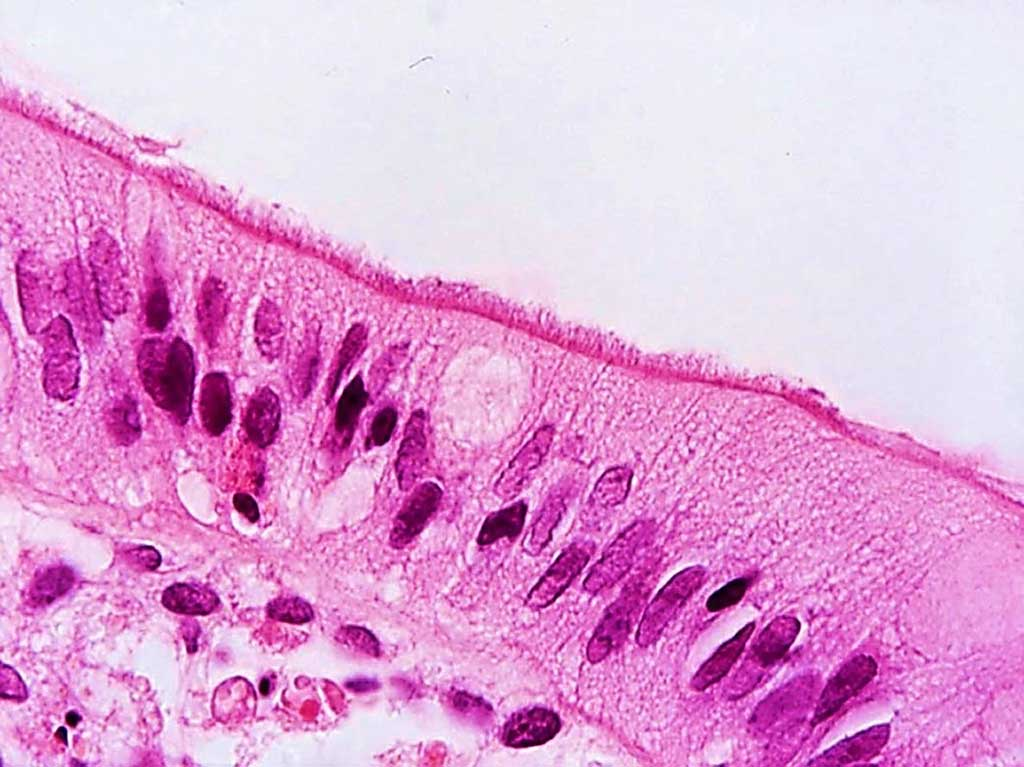 Image: Appearance of a `false brush border` of Brachyspira pilosicoli cells attached by one cell end to the luminal surface of human colonic enterocytes in a patient diagnosed with human intestinal spirochetosis (Photo courtesy of David J. Hampson, PhD, DSc).