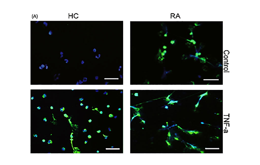 Image: Rheumatoid arthritis (RA)‐derived neutrophils exhibited increased spontaneous NETosis and increased NETotic response to tumor necrosis factor (TNF)‐α. Neutrophils were isolated from patients with RA and healthy controls (HC) (Photo courtesy of Central South University).