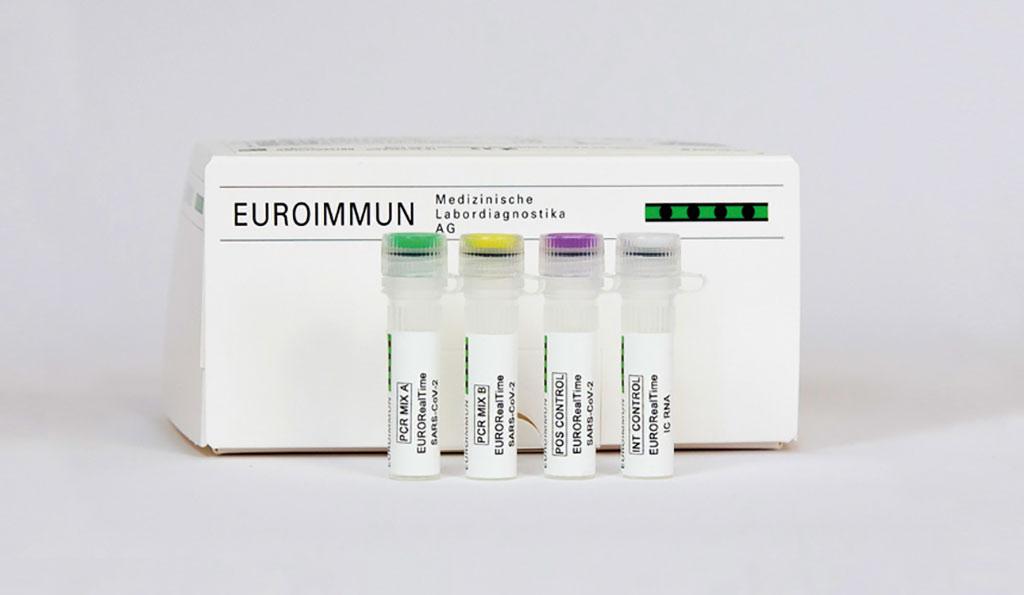Image: EURORealTime SARS-CoV-2/Influenza A/B (Photo courtesy of EUROIMMUN)