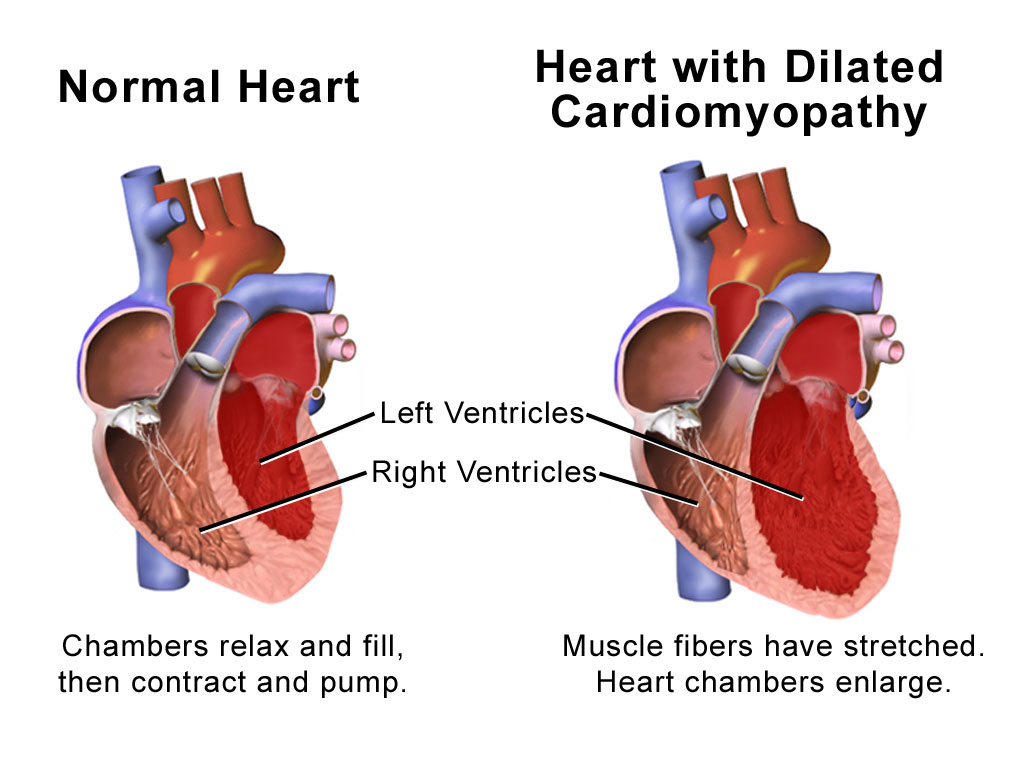Image: Illustration of Normal Heart versus Heart with Dilated Cardiomyopathy (Photo courtesy of Medical gallery of Blausen Medical).