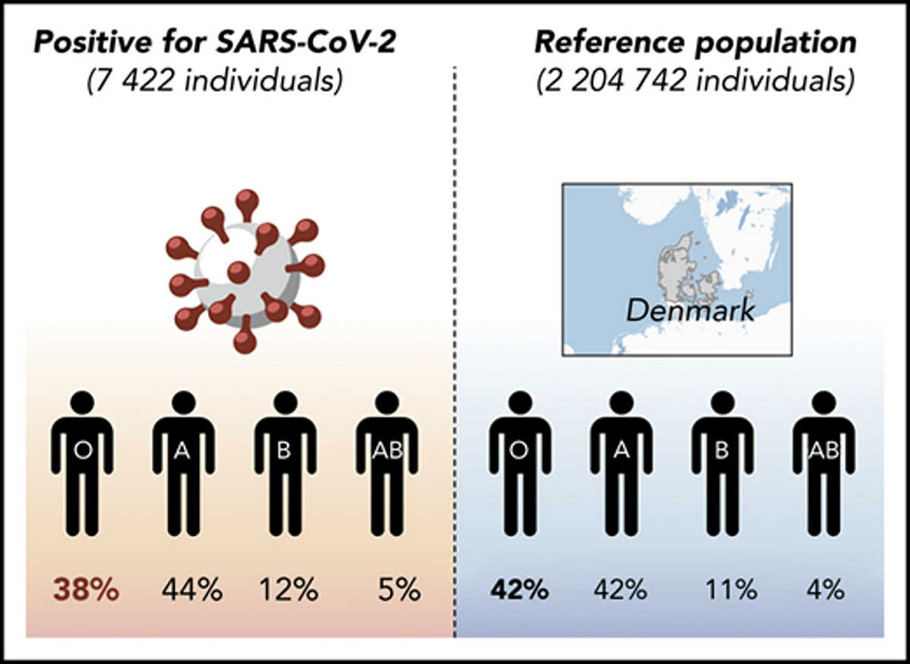 Image: Reduced prevalence of SARS-CoV-2 infection in blood group O individuals reported in Denmark (Photo courtesy of Odense University Hospital).