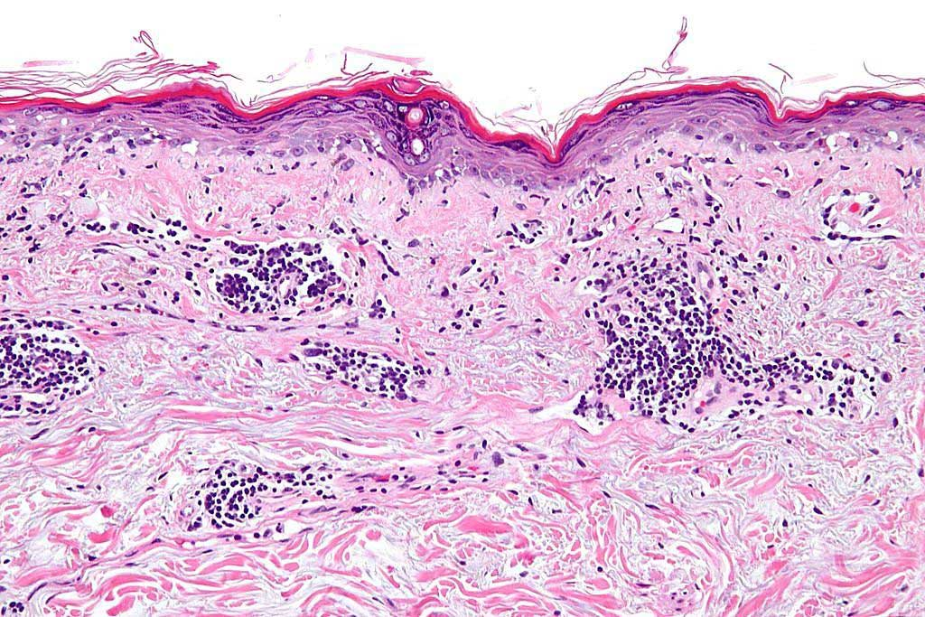 Image: Photomicrograph of a section of human skin showing a vacuolar interface dermatitis with dermal mucin. These findings are consistent with discoid skin lesions in lupus dermatitis (Photo courtesy of Nephron).