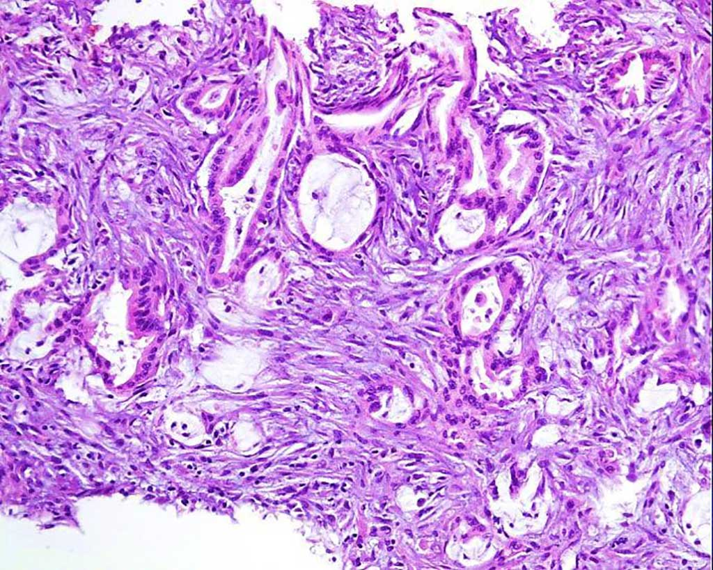 Image: Photomicrograph of omental nodules indicated an adenocarcinoma infiltrating the adipose and fibrous tissues (Photo courtesy of Beijing Shijitan Hospital).