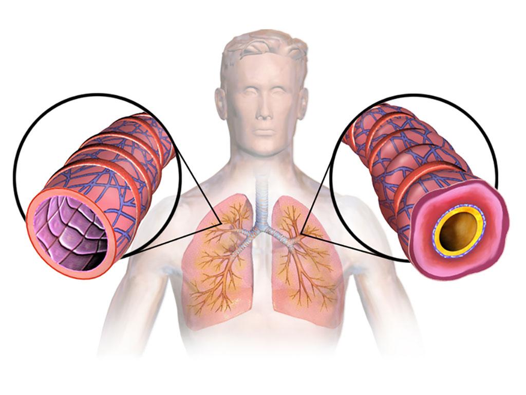 Image: Diagram of asthma (Photo courtesy of Wikimedia Commons)