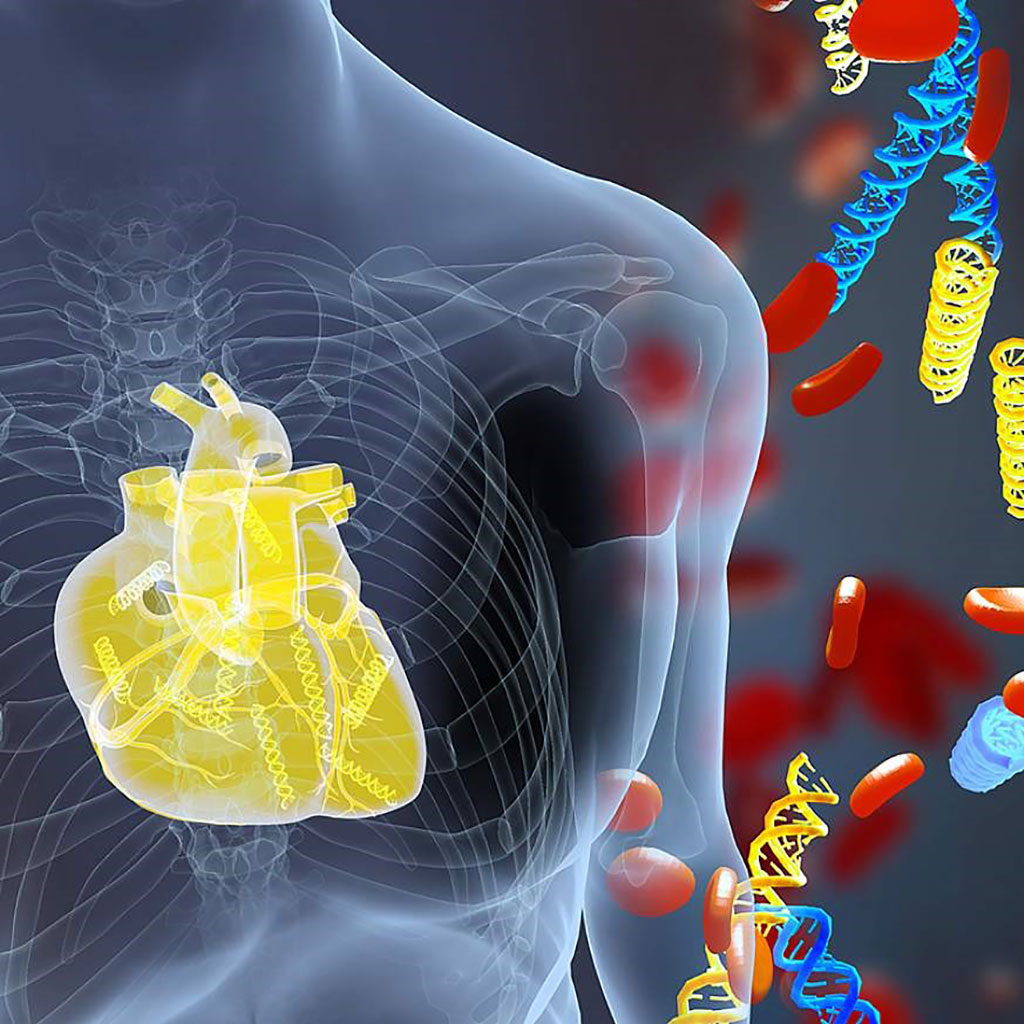 Image: DNA fragments (yellow) derived from a transplanted heart alongside the patient's own DNA (blue). A new blood test measures donor DNA fragments and detects acute heart transplant rejection earlier than current methods (Photo courtesy of Erina He, NIH Medical Arts)