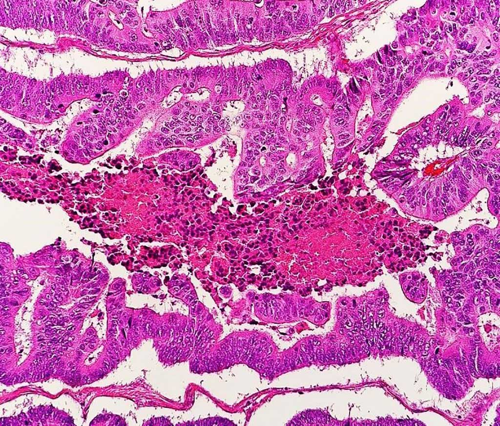 Image: Photomicrograph of a moderately differentiated colorectal carcinoma with dirty necrosis (Photo courtesy of Mikael Häggström, MD).