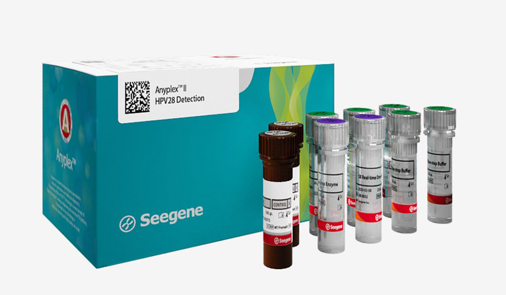 Image: The Anyplex II HPV28 Detection Kit simultaneously detects and identifies 28 HPV types (19 high-risk and 9 low-risk) (Photo courtesy of Seegene).