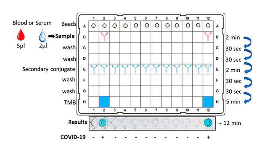 Image: New Rapid COVID-19 Test Beats ELISA Method in Identifying SARS-CoV-2 Antibodies in Blood within Just 12 Minutes (Photo courtesy of American Chemical Society)