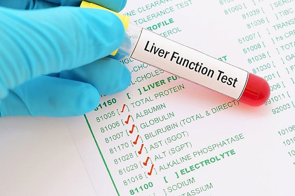 Image: Liver function test abnormalities at hospital admission are associated with severe course of SARS-CoV-2 infection (Photo courtesy of Life Line Screening).