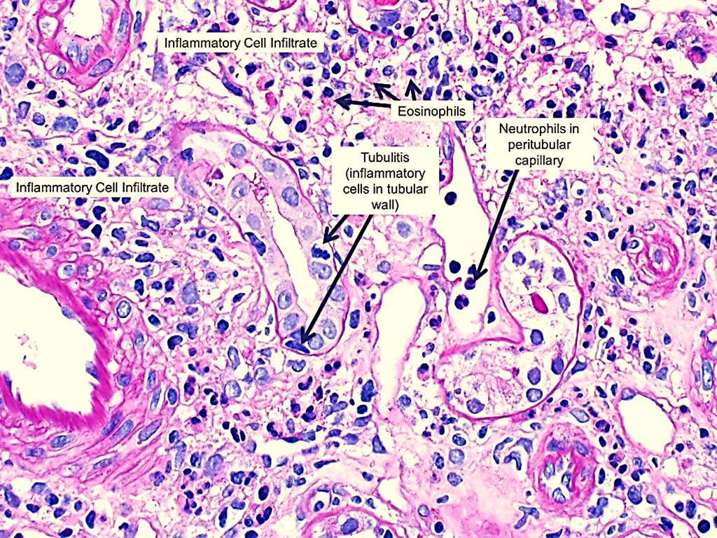 Image: Histopathology of drug-induced acute interstitial nephritis showing interstitial inflammation with prominent eosinophils and tubulitis (the presence of inflammatory cells within the tubular wall) (Photo courtesy of NephSim).