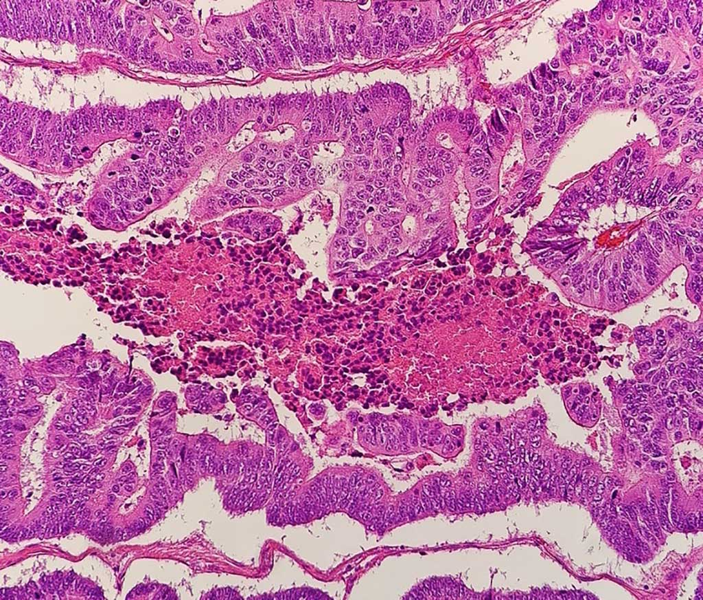 Image: Micrograph of a colorectal adenocarcinoma (Photo courtesy of Wikimedia Commons)