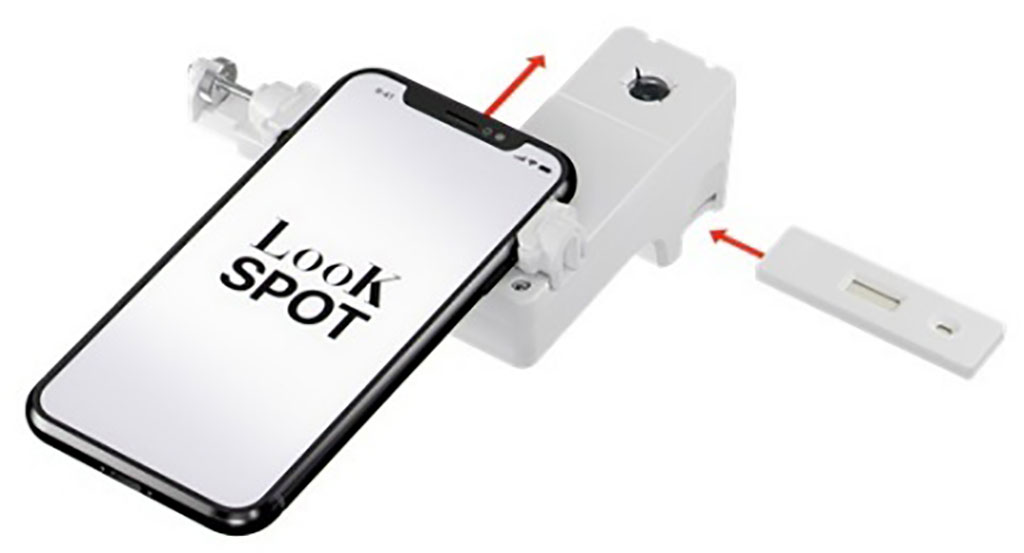 Image: LooK SPOT App (Photo courtesy of AETOSWire)