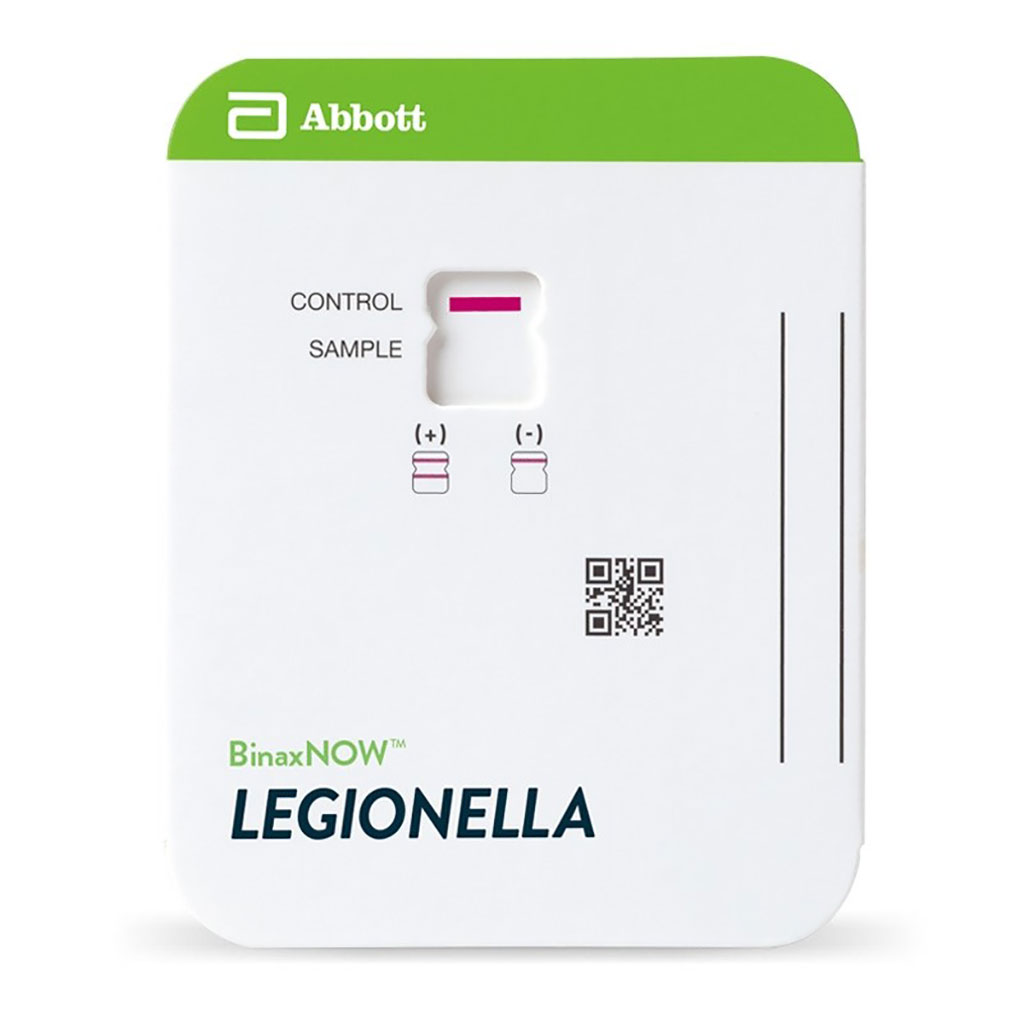 Image: The BinaxNOW Legionella Urinary Antigen Card. Accurate. Rapid identification of Legionnaires` disease caused by Legionella pneumophila serogroup 1 with an easy-to-use technology (Photo courtesy of Abbott).