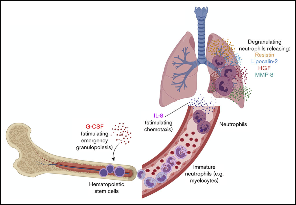Image: Schematic diagram of a neutrophil activation signature predicting critical illness and mortality in COVID-19 (Photo courtesy of Yale School of Medicine).