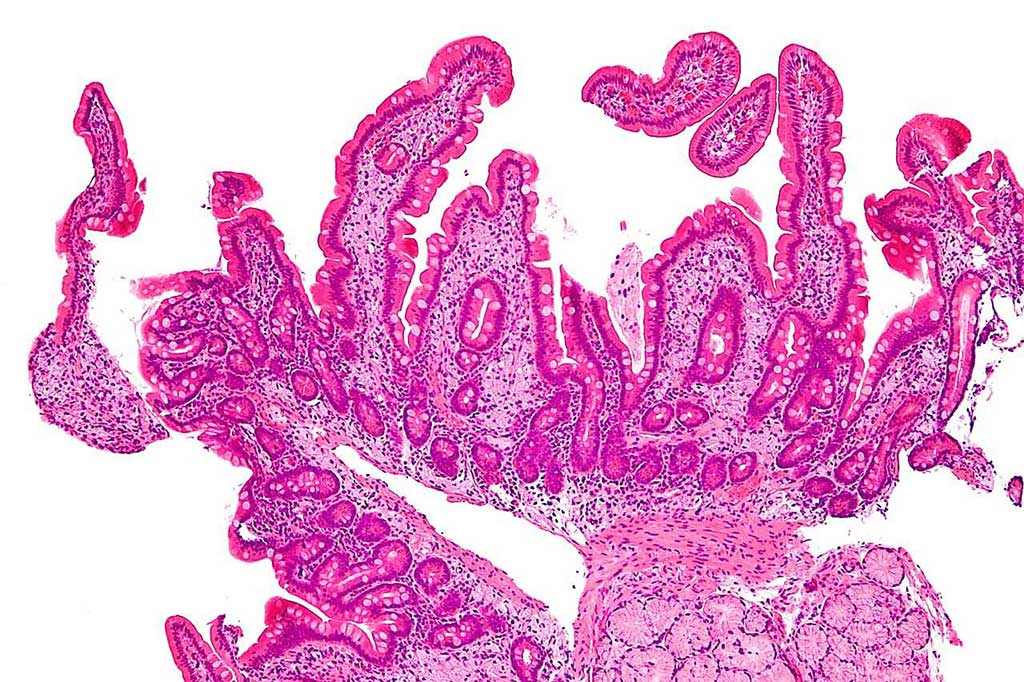 Image: Micrograph of Whipple's disease. This duodenal biopsy shows the characteristic feature of Whipple's disease; foamy macrophages are present in the lamina propria cells (Photo courtesy of Nephron).