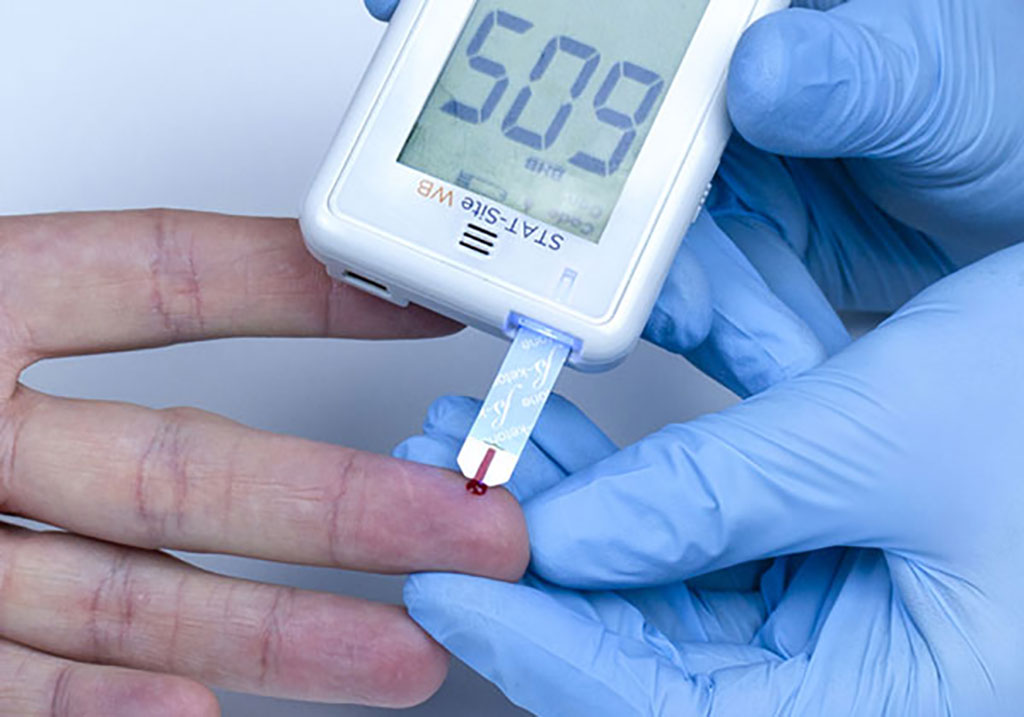 Image: STAT-Site WB β-Ketone and Glucose Handheld Analyzer (Photo courtesy of EKF Diagnostics)