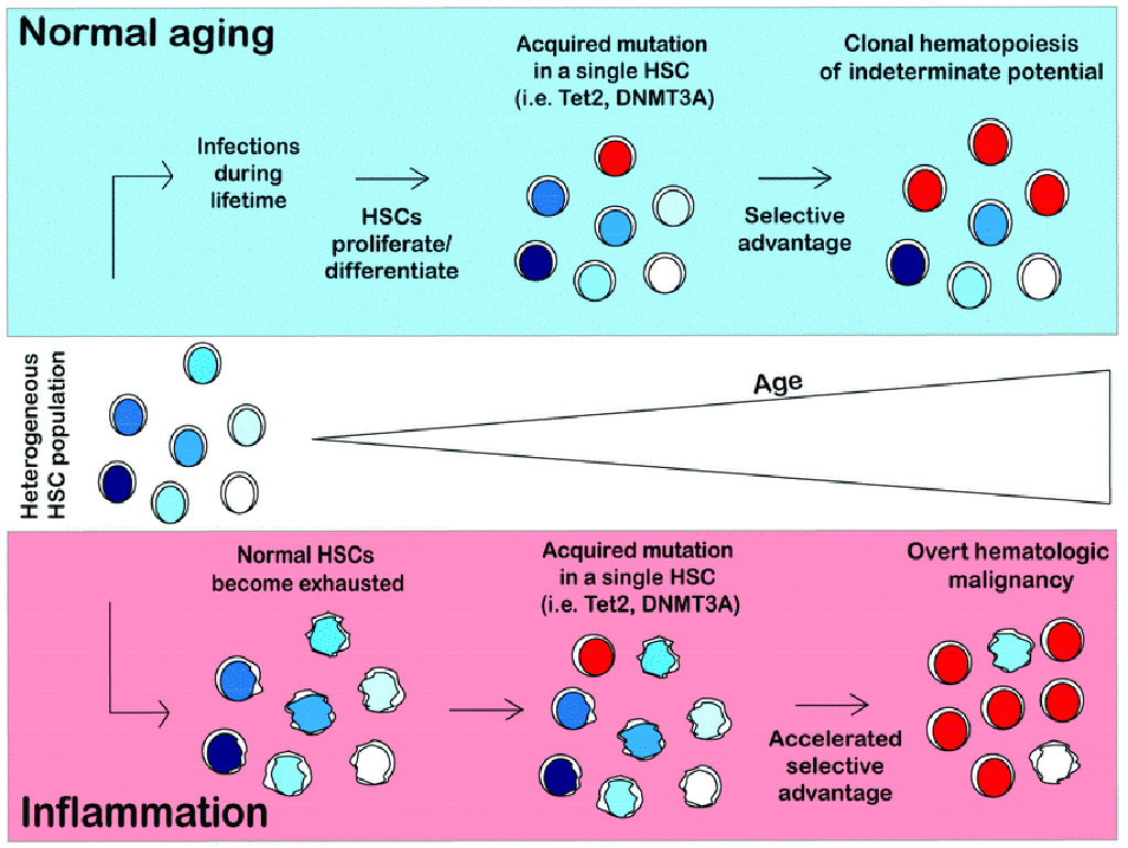 Image: Model of clonal hematopoiesis in normal and inflammatory conditions. In a normal person, hematopoietic stem cells (HSCs) will differentiate and self-renew over the course of a lifetime to replenish the blood system. HSCs will acquire somatic mutations as a result of proliferative stress (Photo courtesy of University of California Irvine).
