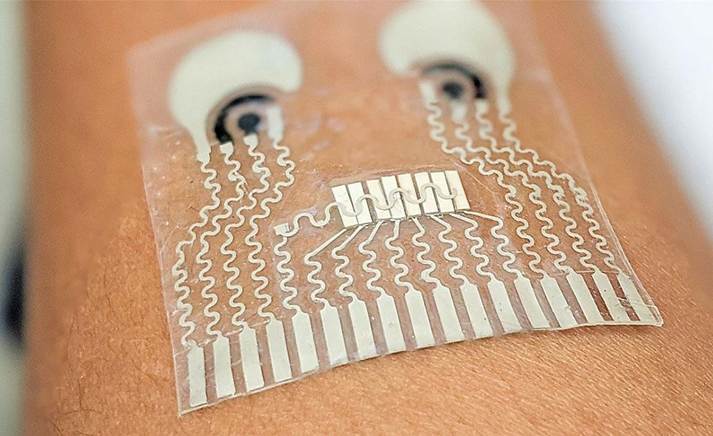 Image: The first wearable device for simultaneous monitoring of hemodynamic and biochemical biomarkers (Photo courtesy of University of California, San Diego)