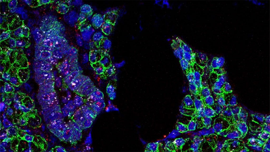 Image: RNA for SARS-CoV-2 (pink) and the ACE2 receptor (white) was found in salivary gland cells, which are outlined in green (Photo courtesy of Paola Perez, PhD, Warner Lab)