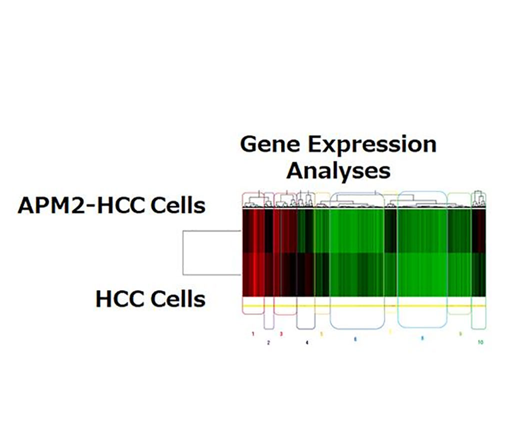 Image: APM2 overexpression increases the expression of the ERCC6L gene (Photo courtesy of Niigata University)