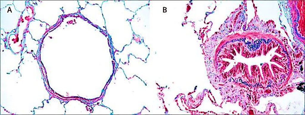 Image: Histology comparison of airway features in (A) a healthy individual and (B) in a patient with chronic obstructive pulmonary disease where airways are narrowed by infiltration of inflammatory cells, mucosal hyperplasia, and deposition of connective tissue in the peribronchiolar space (Photo courtesy of University of Leuven)