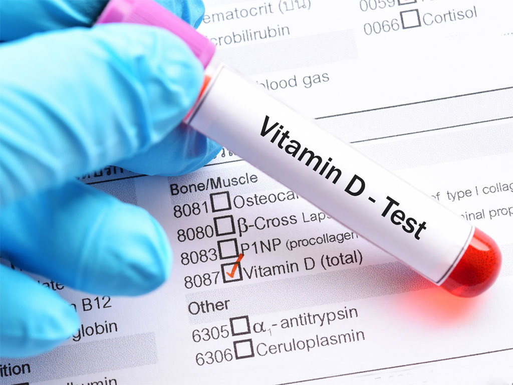 Image: Lower vitamin D levels are associated with metabolic syndrome and insulin resistance in systemic lupus (Photo courtesy of Nikki Yelton, RD)